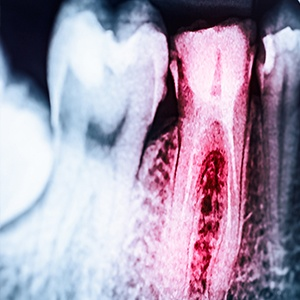 Root Canal Therapy in Accra, Ghana | Bethel Dental Clinic