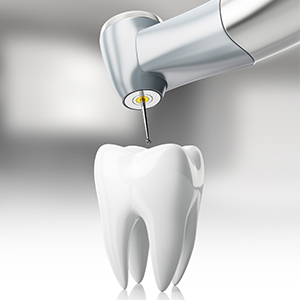 computer illustration of drilling in tooth