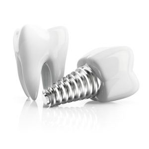 dental implants and tooth