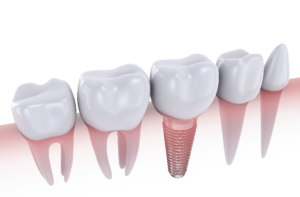 dental implant for molar