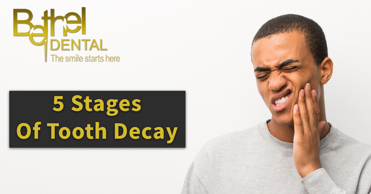 Your Family Dentist Can Help You Prevent Tooth Decay