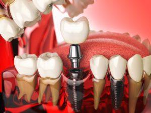 digital model of dental implant