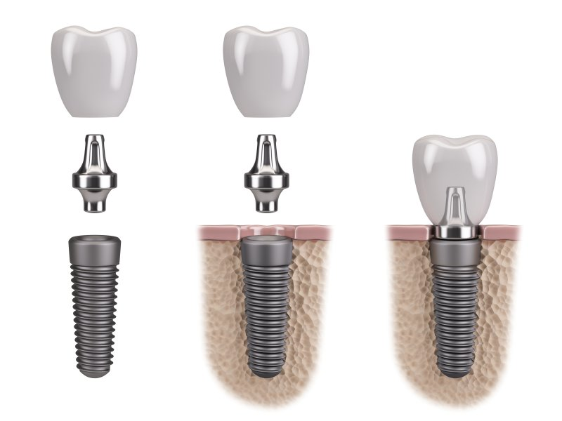 Dental Implant, Abutment, Crown