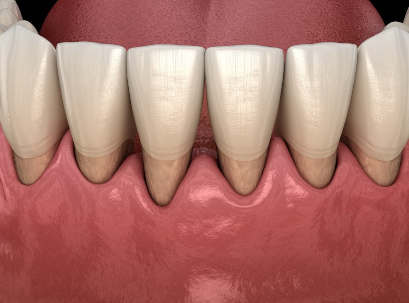 3D illustration of receding gums on lower arch