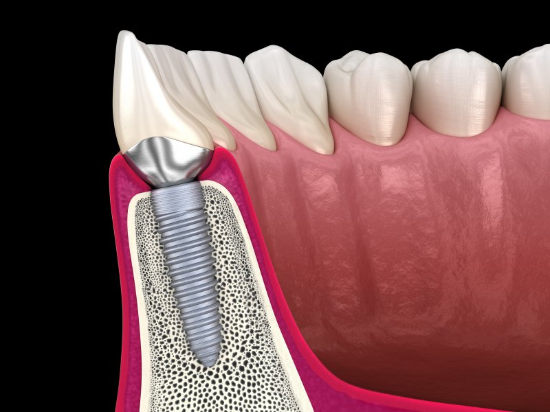 Illustration of dental implant in lower arch