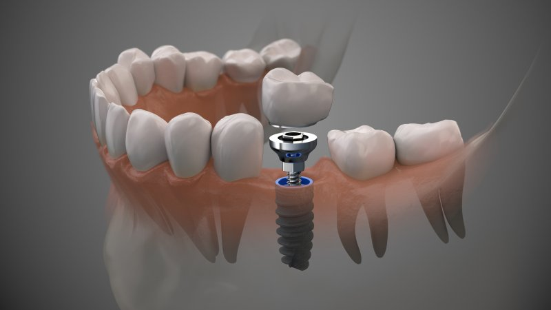 Model of an implant, abutment, and dental crown in jaw