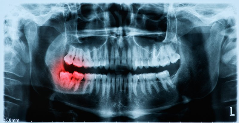 Panoramic X-ray showing wisdom tooth pushing other teeth