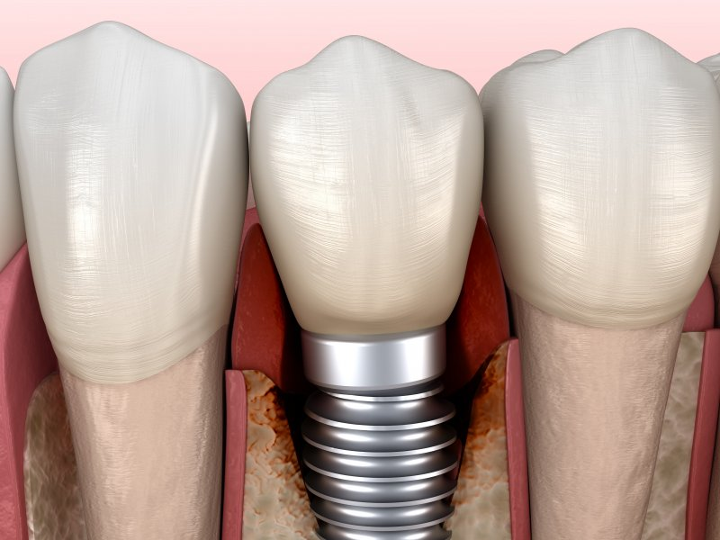 Illustration of bone loss around a dental implant