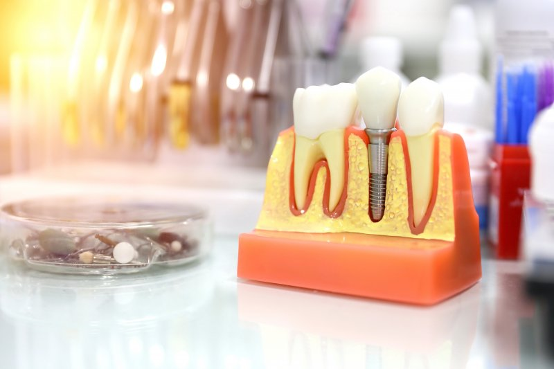 Model showing dental implant in the mouth
